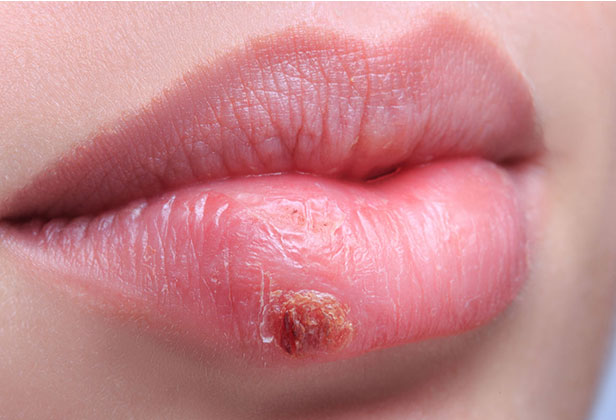 Cold Sores Online Treatment Herpes Simplex 1 Treatment Herp Alert