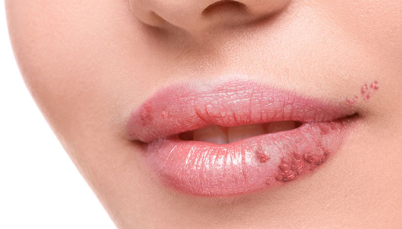Genital Herpes Treatment At Home Hsv 2 Online Treatment Herp Alert